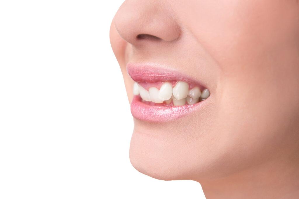 Oralchirurgie gegen schiefe Zähne Rostock Warnemünde
